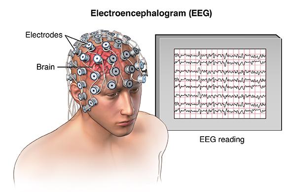 Bilderesultat for EEG