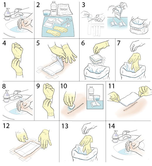 step by step changing a surgical wound dressing saint luke s