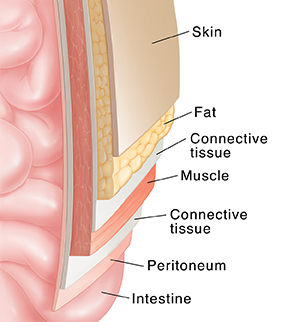 cross section of abdominal wall over intestine showing layers: skin, fat,  fascia,