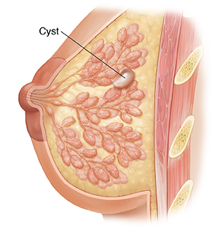Understanding Breast Cysts | Saint Luke's Health System