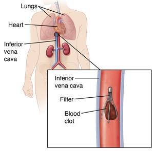 Vena Cava Filter Implantation   Saint Luke's Health System