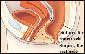 Vista in sezione di retto e vagina