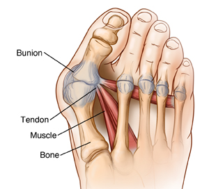 Foot and toes showing big toe bent at base, forming bunion.