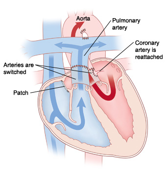 Your Childs Transposition Of The Great Arteries Surgery Saint