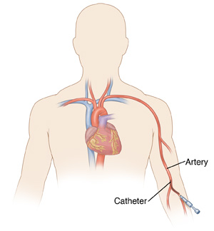 Front view of a male torso showing the heart and radial artery of the arm. A catheter is inserted into the radial artery.
