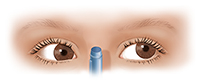 Front view of child's eyes with convergence insufficiency.