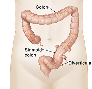 front view of colon with diverticula pouches in lower part