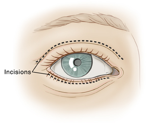 Front view of eye showing dotted line on top eyelid and dotted line underneath lower lashes for eyelid surgery.