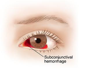 subconjunctival hemorrhage saint luke s health system