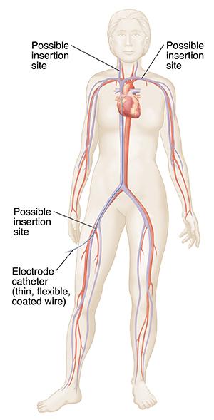 electrophysiology study  eps