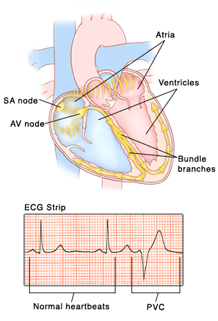 Premature ventricular contractions saint lukes health system front view of heart showing atria on top and ventricles on bottom sa node and ccuart Image collections