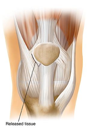 Kneecap Surgery Realignment Saint Luke S Health System