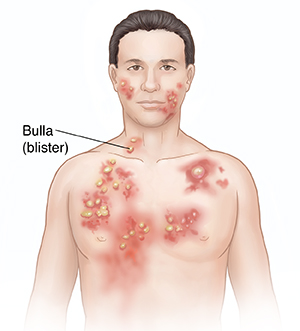 Front view of man's head and chest showing bullous pemphigoid.