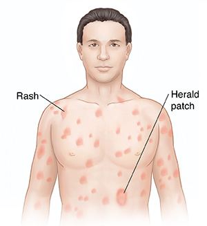 pityriasis rosea treatment steroids