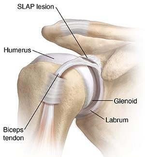 How to Diagnose a Torn Shoulder Labrum