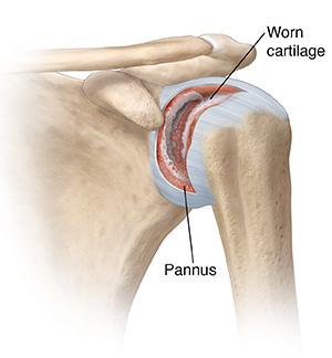 Shoulder Problems Saint Luke S Health System