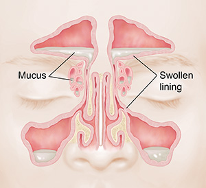 Front view of sinuses showing pale, swollen mucosa and mucus buildup.