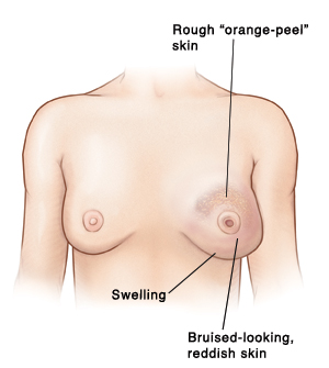 Pictures of normal nipples The bumps on areola are