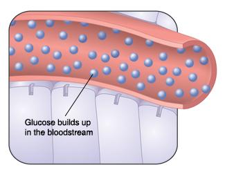 Understanding Type 1 Diabetes Saint Luke S Health System