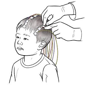 when your child needs an electroencephalogram eeg saint luke s