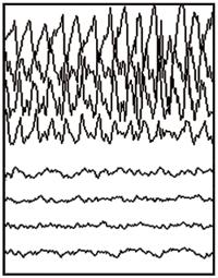 Epilepsy How Seizures Affect The Body Saint Luke S Health