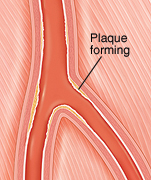 Cross section of peripheral artery with damaged lining.