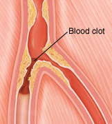 Cross section of peripheral artery blocked by plaque and blood clot.