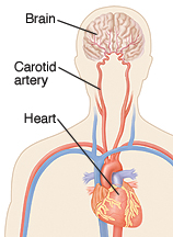 Medical illustration of brain, carotid artery, and heart