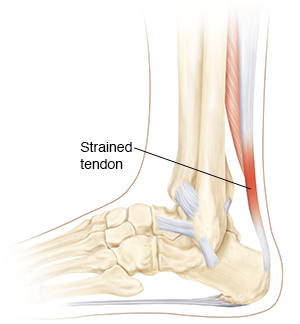 Lateral view of bones of leg/foot below the knee w/ important ligaments with a strained achilles tendon.
