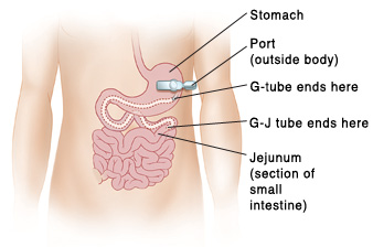 food tube diagram gastrostomy or gastro jejunum tube syringe feeding saint luke s  gastro jejunum tube syringe feeding