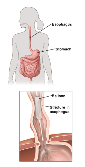 outline of human figure showing digestive system  inset shows balloon  widening stricture in esophagus