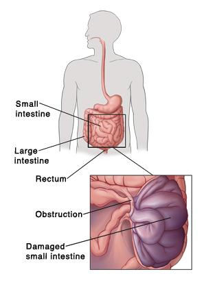 Small Bowel Obstruction Saint Lukes Health System