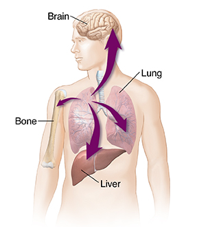 What Is Lung Cancer? | Saint Luke\'s Health System