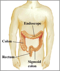 Lower gi endoscopy sciox Images