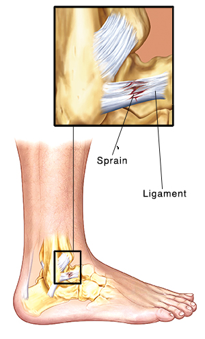 Side view of ankle bones and ligaments with an insets showing a tear in the ligament.