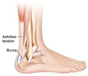 bursitis foot treatment