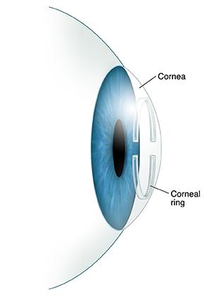 Understanding Corneal Ring Implantation | Saint Luke's Health System