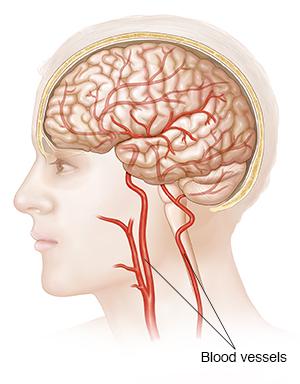 Understanding Cerebral Angiography | Saint Luke\'s Health System