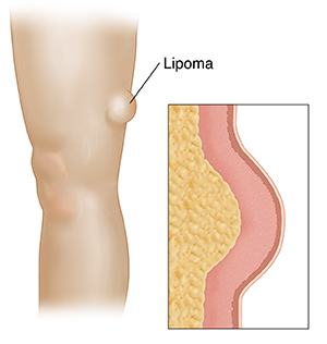 what causes lipomas #11