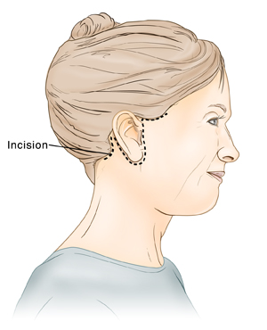 Side view of woman's head showing incision for rhytidectomy (facelift).