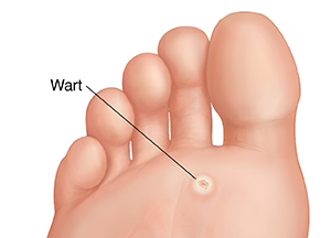 Warts on bottom of foot