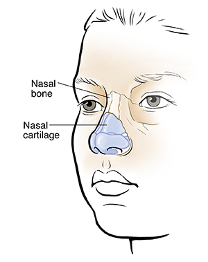 Understanding Broken Nose Nasal Fracture In Children Saint