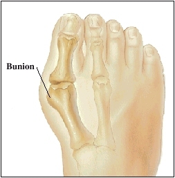 What Are Bunions? | Saint Luke's Health System