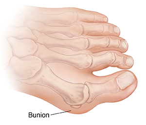 Top view of foot with bones ghosted in, showing bunion.