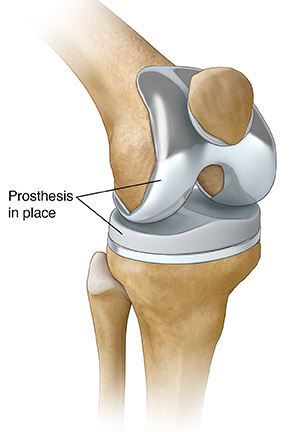 Total Knee Replacement Saint Luke S Health System