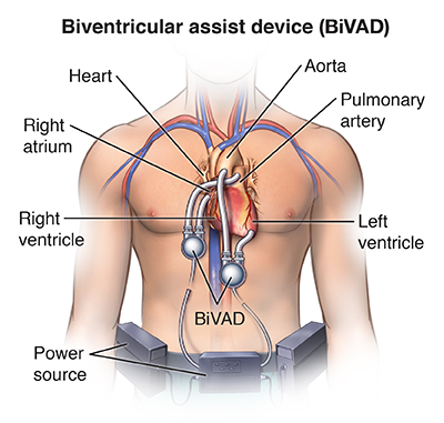 Biventricular assist device implantation health resources pcardio20140527v0001 ccuart Choice Image