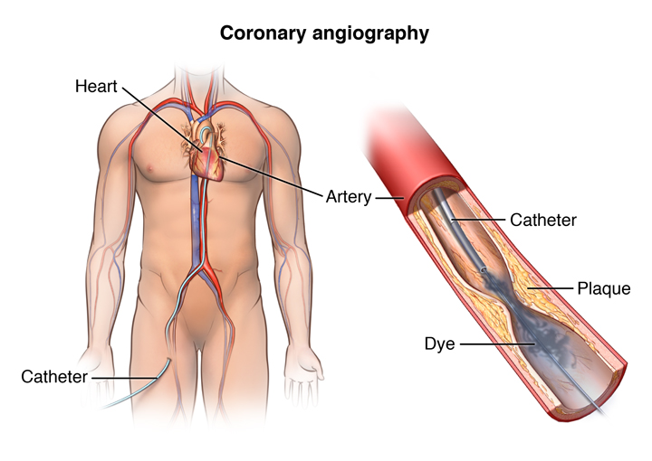Angioplasty And Stent Placement For The Heart Health Resources