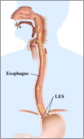 Pain In Lower Esophagus When Swallowing Food