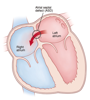 Front view cross section of heart showing atrial septal defect. Arrows indicate blood flowing through defect from left atrium to right atrium.