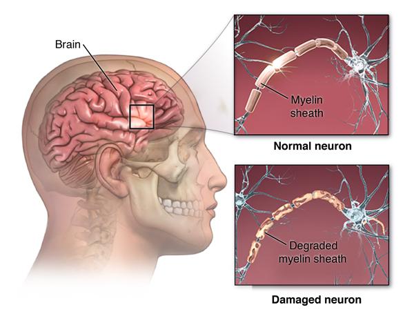 Vaginal dilation multiple sclerosis